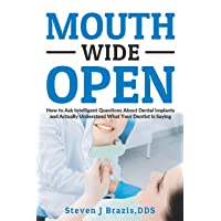 Mouth Wide Open: How To Ask Intelligent Questions About Dental Implants and Actually...