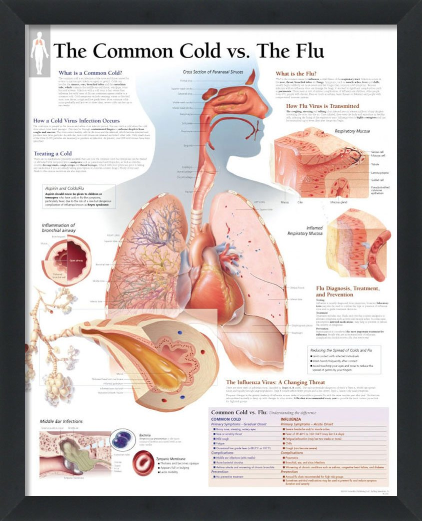 Set of 2 Framed Medical Posters Understanding The Common Cold and ...