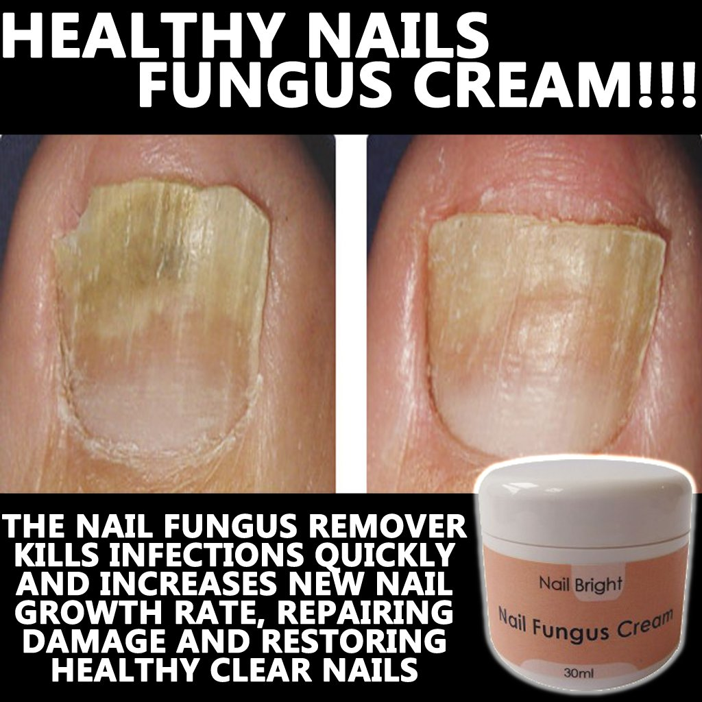 NAIL BRIGHT NUMBER ONE NAIL FUNGUS REMOVER !! FAST & EFFECTIVE ...