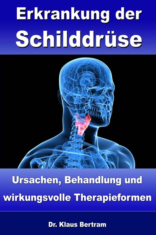 Delicieux Erkrankung Der Schilddrüse: Ursachen, Behandlung Und Wirkungsvolle  Therapieformen (German Edition): Dr. Klaus Bertram: 9781482358919:  Amazon.com: Books