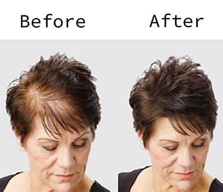 BLISSANY Fibras capilares - Engrosamiento del cabello - Cabello desparramado - Polvo capilar - Fibras capilares para hombres y mujeres - Pelo grueso ...