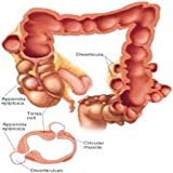 Get Rid Of Diverticulosis