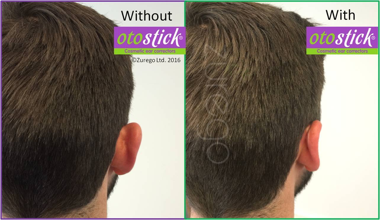 Amazoncom Otostick Cosmetic Instant Correction For Prominent - Custom vinyl decal application fluidhow to make decal application fluidhair loss surgery