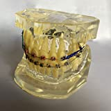 Transparent Dental Standard Orthodontics Teeth Model with Colorful Brackets & Hoops
