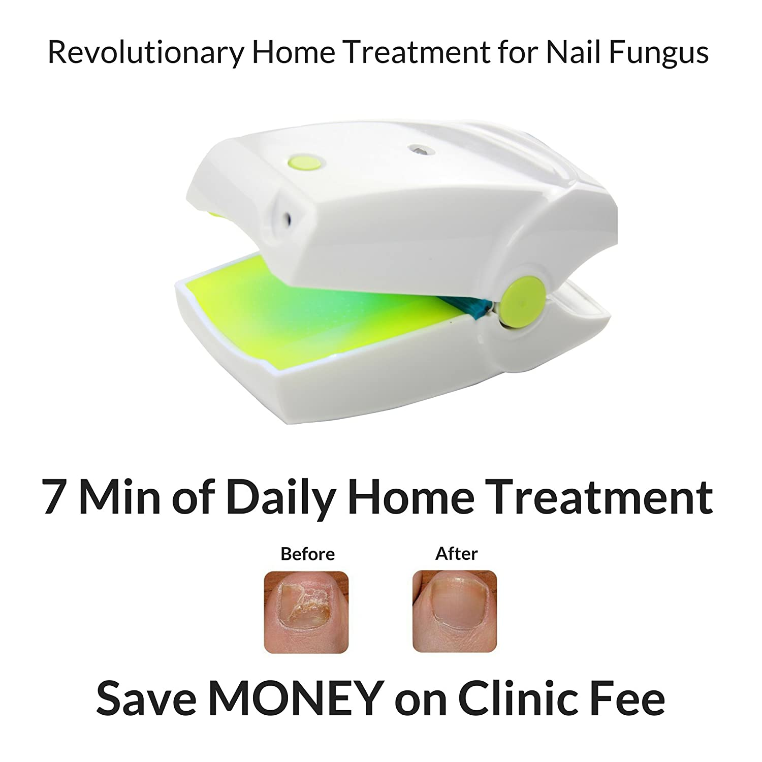 Highly Effective Rechargeable Nail Fungus Laser Treatment Device for Onychomycosis Cure. This Instrument is for Home use and Takes Care of Nail Fungus and infections. Easy to use and Fast Results. Cherrish