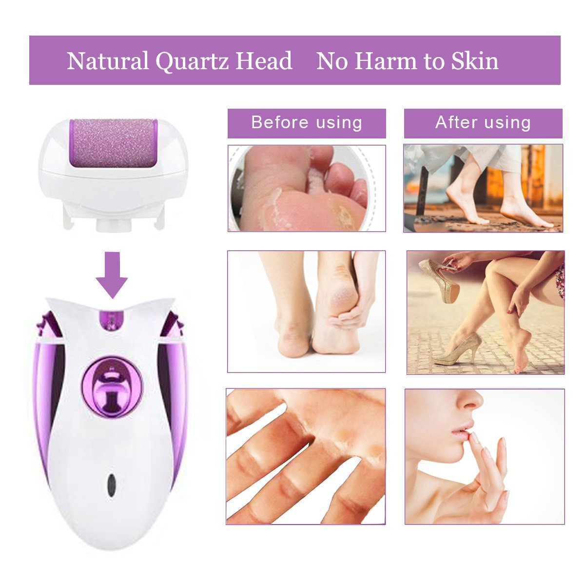 Rechargeable Electric Epilator, 4 in 1 Bikini Trimmer Callus Remover with 2 Adjustable Speed Ladies Shaver Hair Clipper Pedicure Foot Care Tool Womens Trimmer Hair Removal Hair Cutting Device