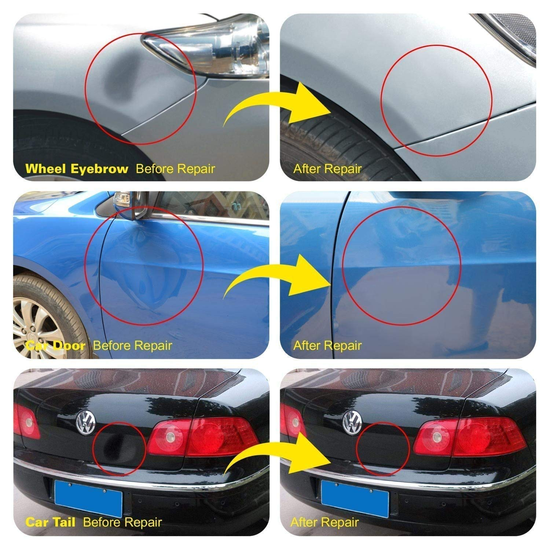 AUTOPDR 52Pcs Dent Repair Kit,Professional Dent Puller Kit,PDR Tools 52Pcs Dent Remover for Car Body Dent Repair Kit by AUTOPDR (Image #6)