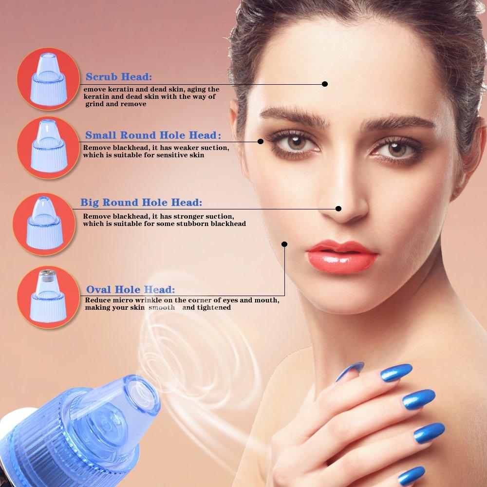 Eliminador de puntos negros, aspirador de puntos negros, limpiador de poros faciales eléctrico: Amazon.es: Belleza