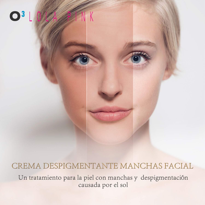 O³ Crema Antimanchas Facial Lola Pink - 2 Unidades x 30 g - Cosmética Anti-Manchas | Despigmentante Facial Para La Cara - Crema Blanqueadora Quita Manchas ...