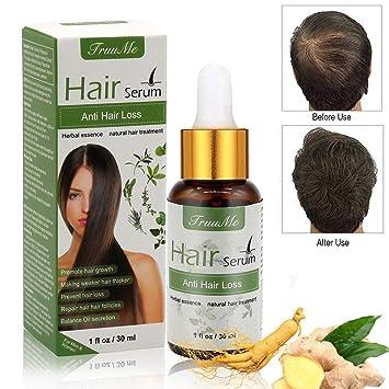 28bdff31b65 Hair Growth Serum, Hair Serum, Anti Hair Loss, Natural Herbal essence Anti  Hair Loss Hair Serum, ...