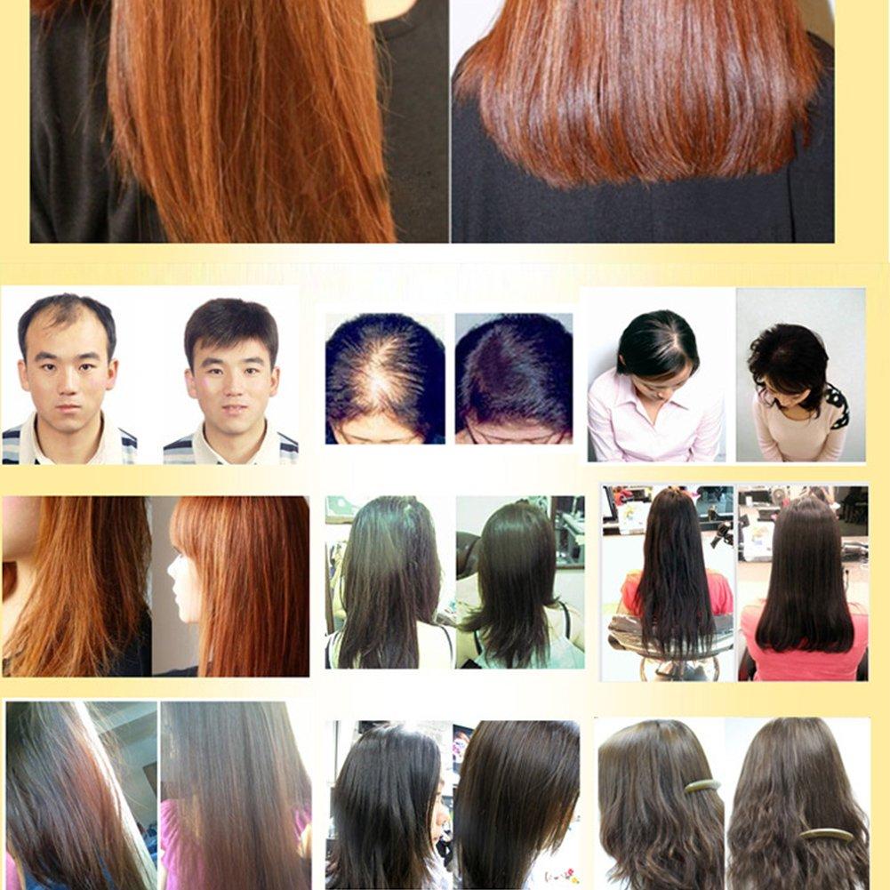 Schnelles Wachstum Essence Flüssigkeit Andrea 20 Ml Haarwuchs Serum