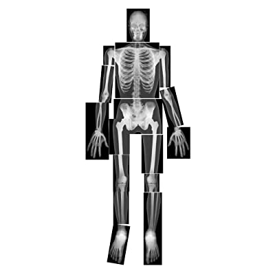 Roylco True to Life Human X-Rays: Toys & Games