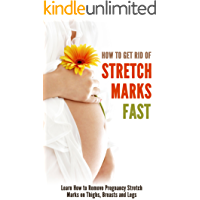 How to Get Rid of Stretch Marks Fast: Learn How to Remove Pregnancy Stretch Marks on Thighs, Breasts and Legs (English Edition)