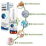 Foot Spray,Athletes Foot Spray,Natural formula