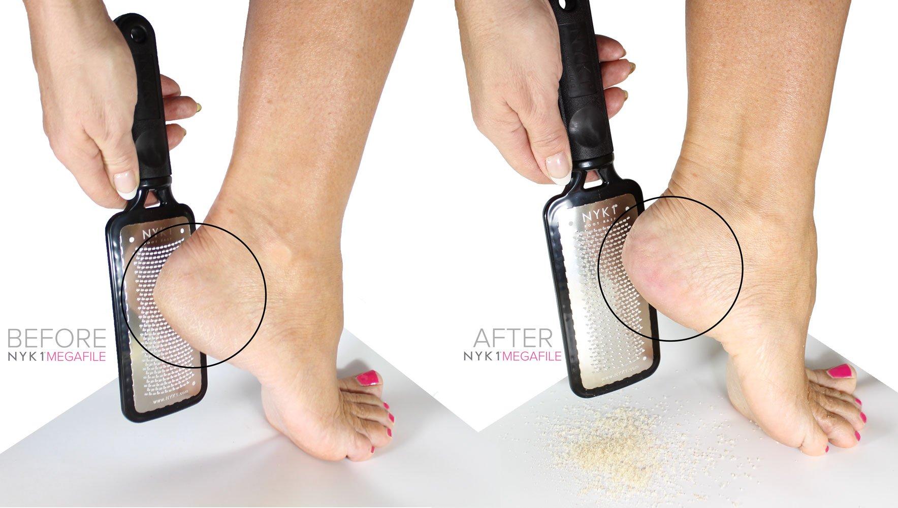 Hard Foot Skin Remover File - BEST MEGA Foot File Pedicure Rasp GENUINE MEGAFILE Professional Heel Care Callus Dry Dead Skin Egg Corn Sander Scrubber Pumice Stone Alt Ped Pedi Feet Grater Add on Item by NYK1 (Image #6)