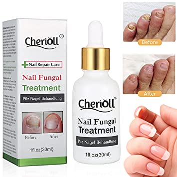 Nail Fungus Treatment,Nail Antifungal Treatment,Fungus Stop,Anti Fungus  Nail Treatment,Nail Care...