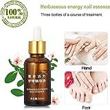 Aceite reparador para uñas & cutículas – 30ML - Con Esencia Herbácea - Tratamiento de uñas