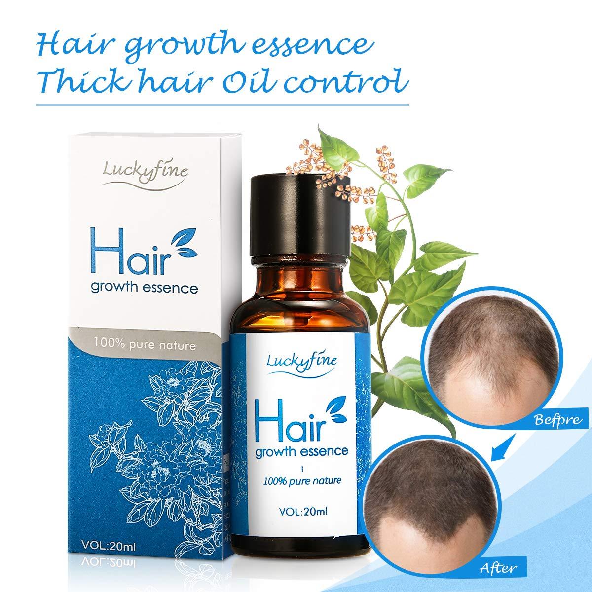 Olio per la crescita dei capelli Luckyfine Anti Hair Loss Serum - Formula  naturale alle erbe 394ca15a9b54