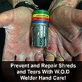 Callus Repair Hand Care Treatment Salve By WOD