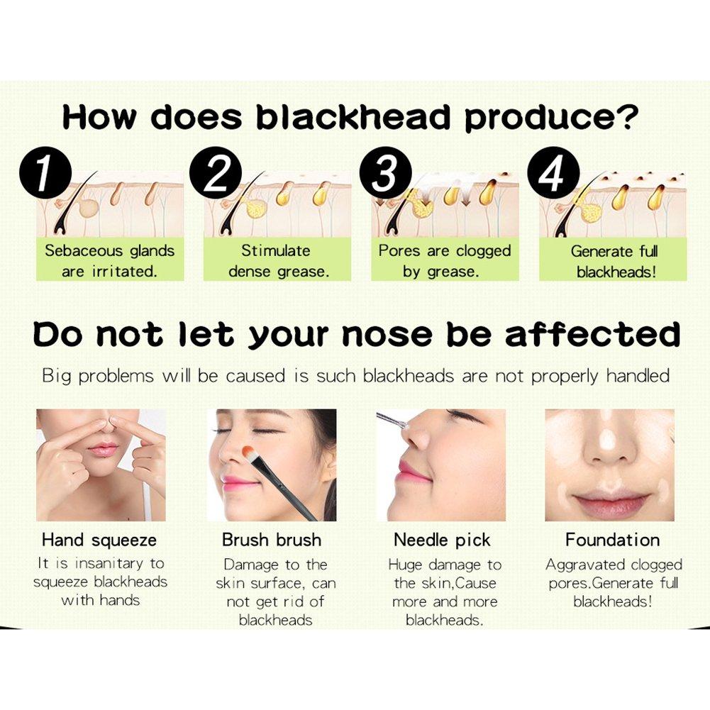 Amazon com : Blackhead Remover Nose Mask Deep Cleansing Peel