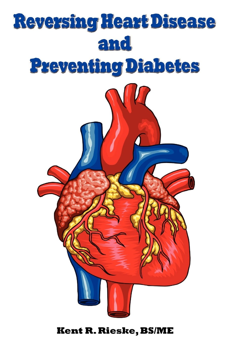 Reversing Heart Disease and Preventing Diabetes: Apply Science to ...