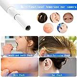 Cakler Ear Otoscope, Wireless Ear Endoscope, 1.3