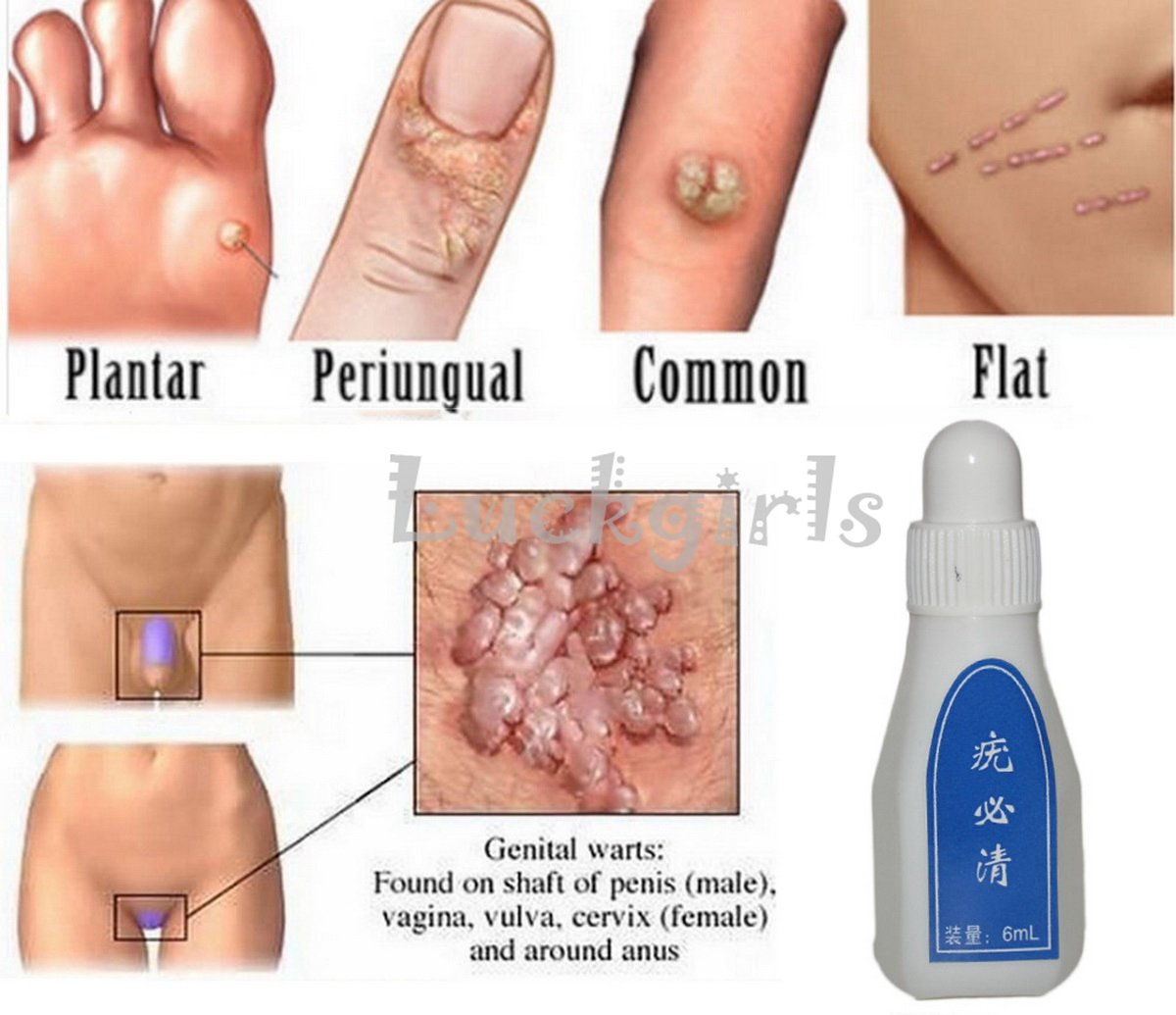 wart remover for skin tags