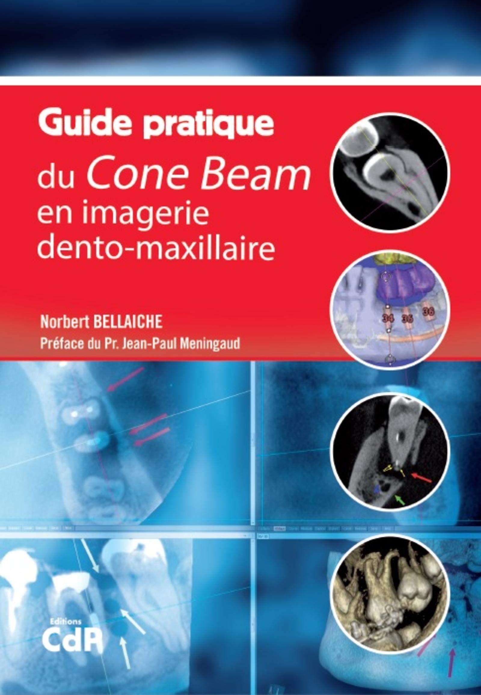 Guide Pratique Du Cone Beam En Imagerie Dento Maxillaire