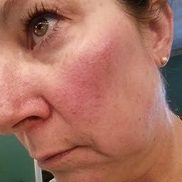 Amazon com: Prosacea Rosacea Treatment Gel, 0 75 Ounce Tubes