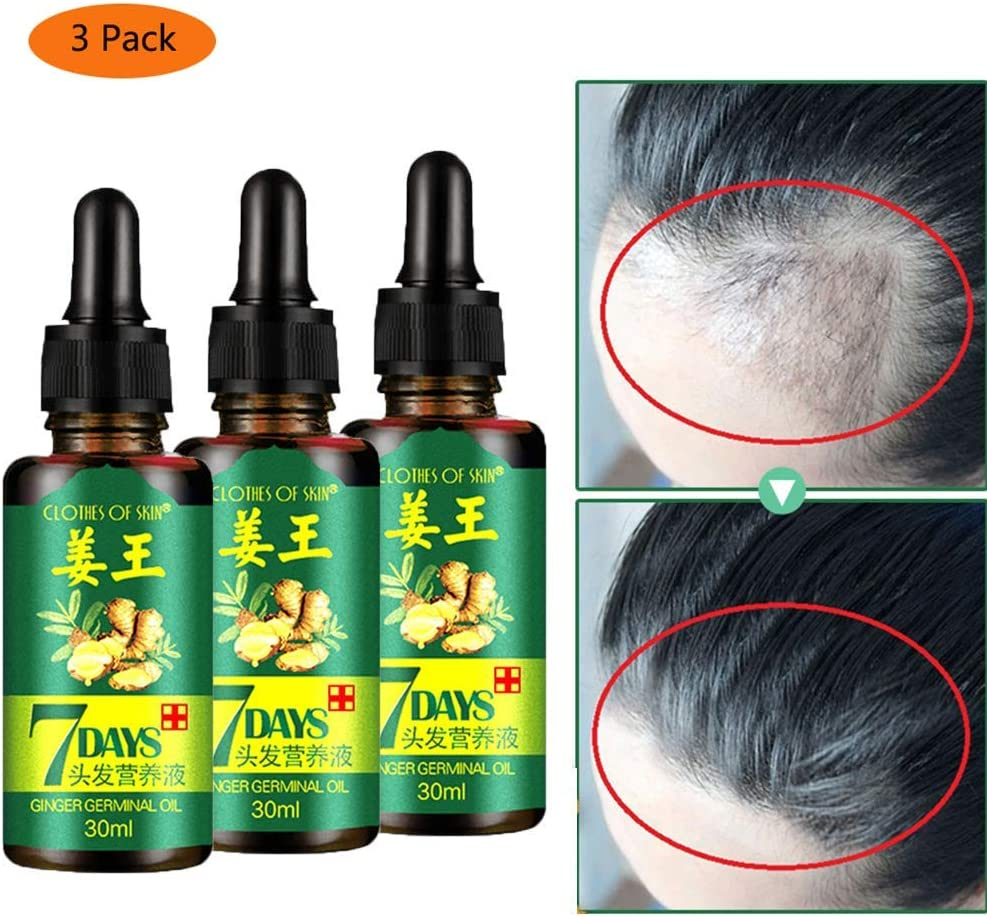 7 Days Hair Growth Ginger Essence, Ginger Germinal Oil, Ginger Hair Growth Serum, Ginger Essential Oil Stop Hair Loss Hair, Thinning Treatment Hair Growth Oil for Women & Men 30ML(3Pack)