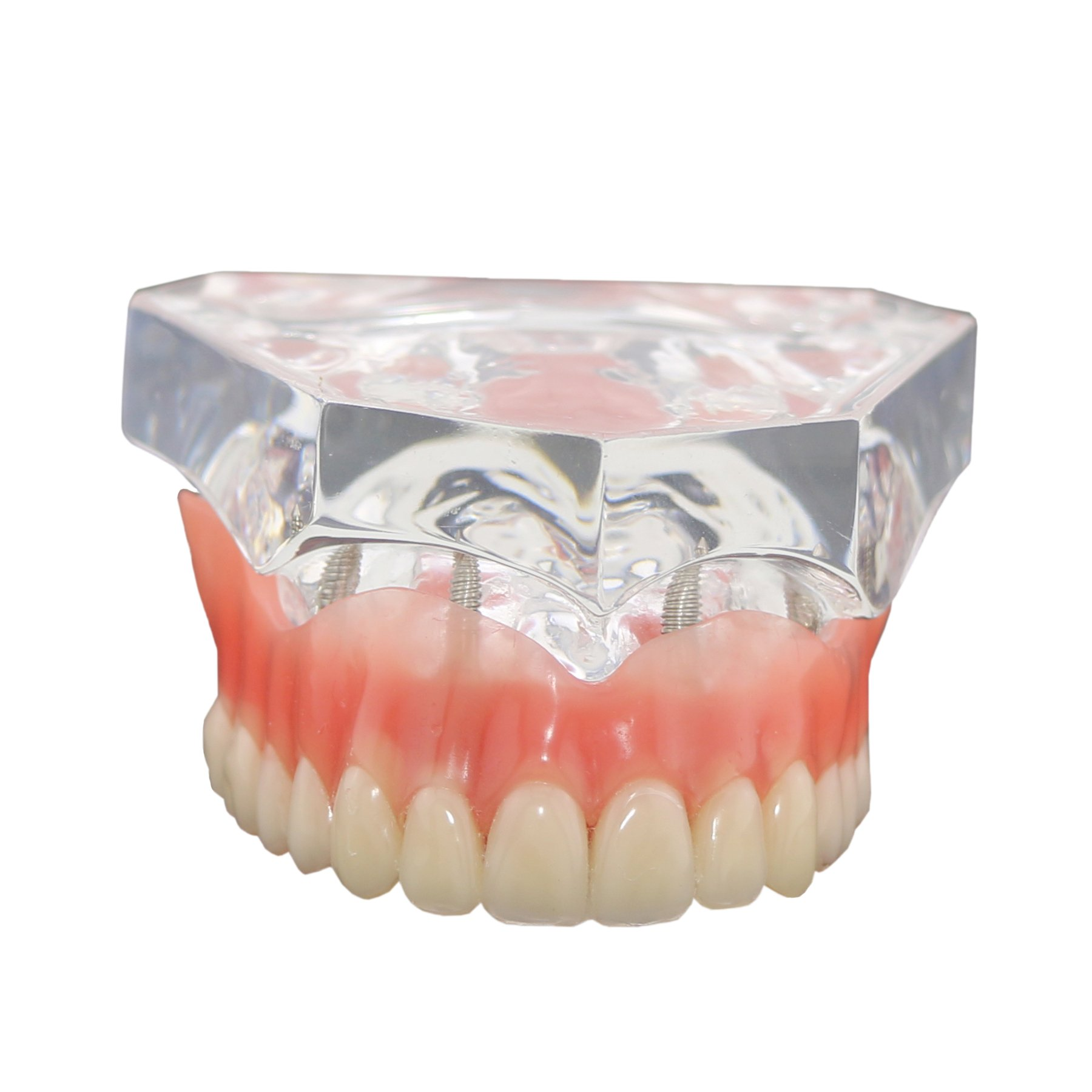 Dental Implants Teeth Model with 4 Upper Jaw Removable Overdenture Transparent Mode Tool of Adult for Teaching Dducation Studying typodont