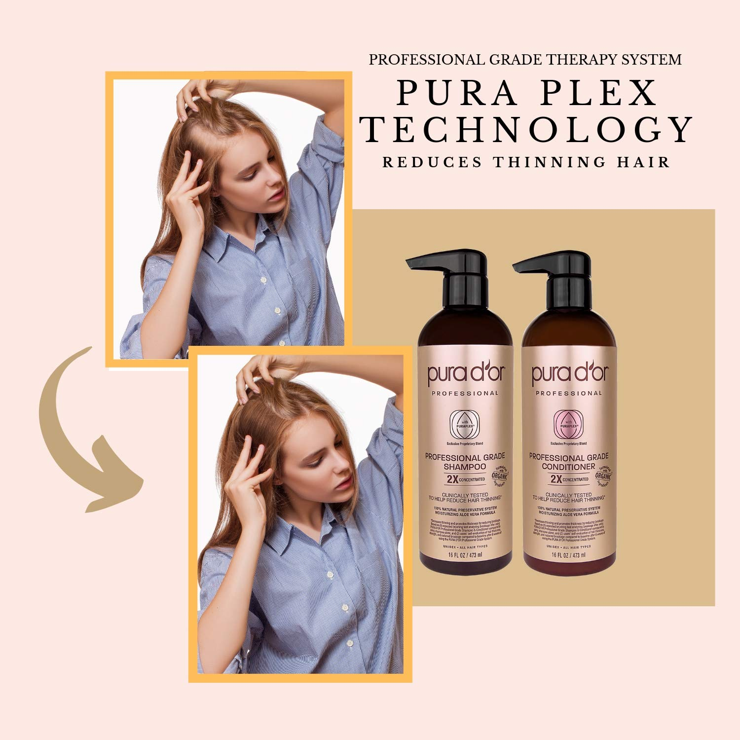 PURA D'OR Professional Grade Golden Biotin Anti-Hair Thinning 2X Concentrated Actives Shampoo & Conditioner Set, Sulfate Free, Natural Ingredients, Clinically Tested, Men & Women (Packaging may vary) by PURA D'OR (Image #4)