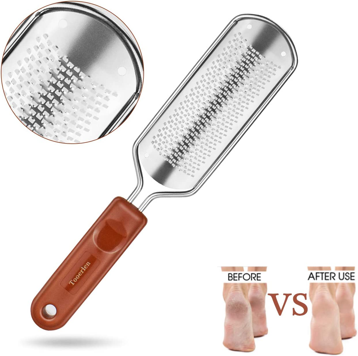 Tooerlen Foot Rasp Foot File Foot Grater, Can be Used on Both Wet and Dry Feet, Best Foot Care Pedicure Metal Surface Tool to Remove Hard Skin, for Extra Smooth and Beauty Foot- (Colossal)