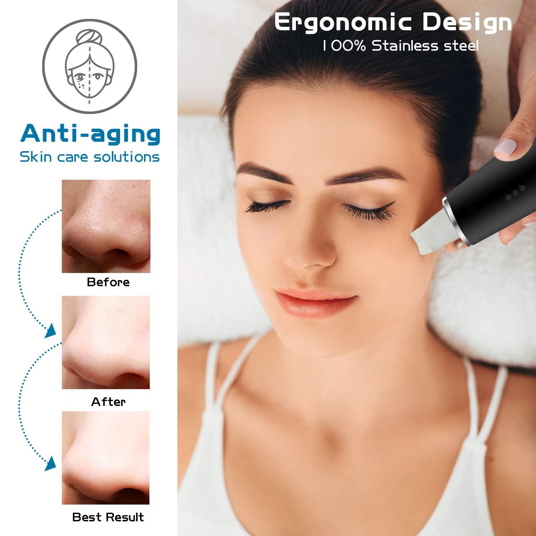 Blackhead Remover Vacuum,3 in 1 Ultrasonic Face Pores Cleaner (Black)