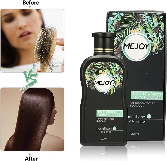 Champú anticaída Luckyfine para el crecimiento del cabello y restauración del cabello para hombres y mujeres, 200 ml: Amazon.es: Belleza