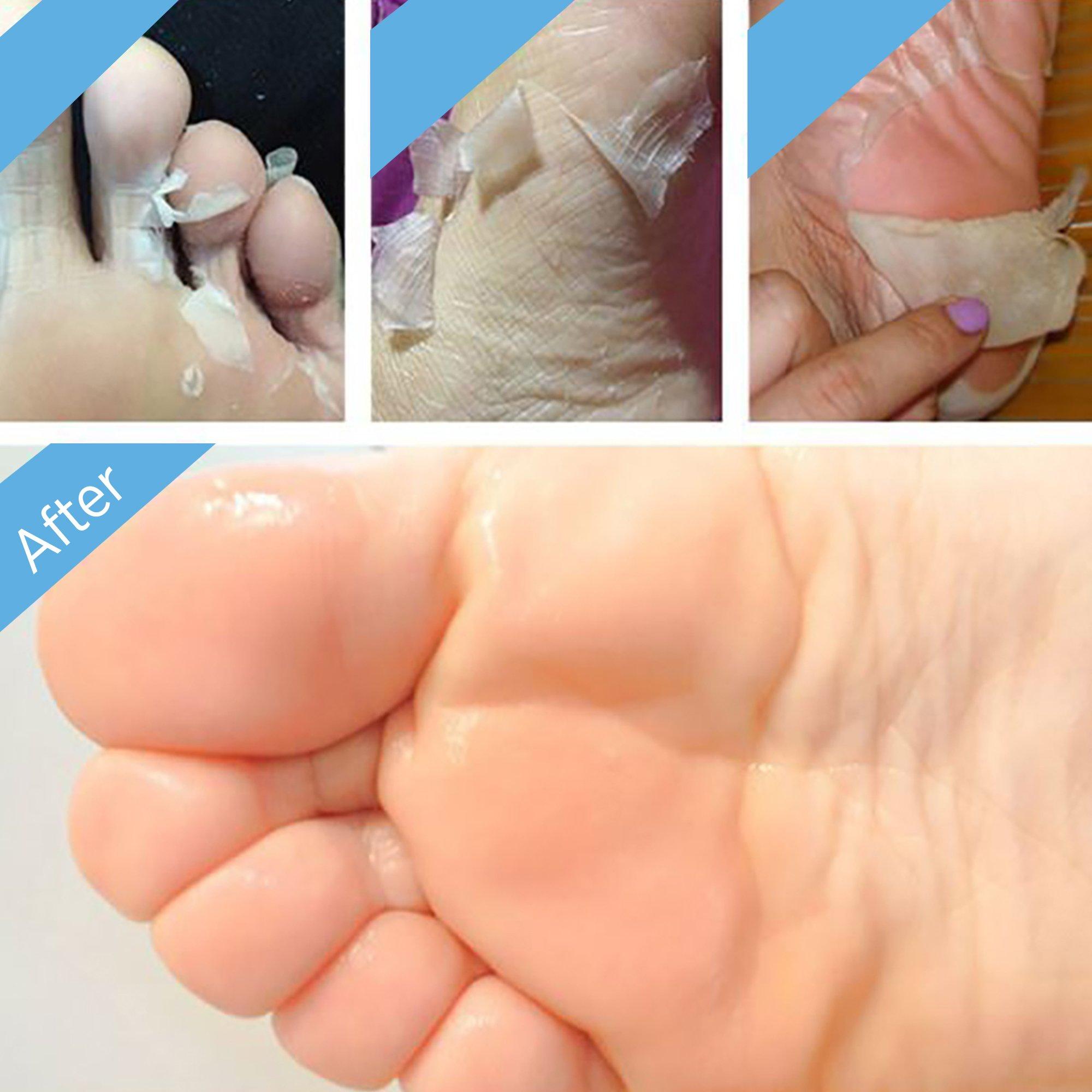 2 Pairs Exfoliating Foot Peel Mask, Soft & Smooth Feet, Peeling Away Rough Dead Skin & Calluses in 1-2 Weeks, Repairing Exfoliant by BEALUZ (Image #5)