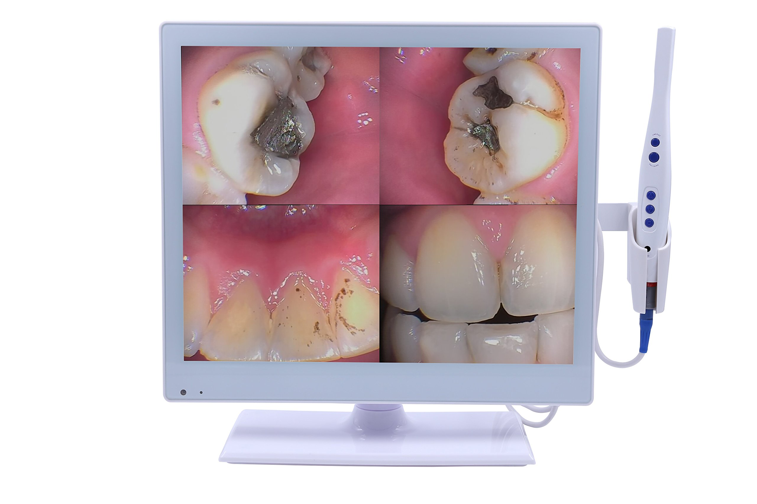Superdental Wired Intraoral Camera+self-contained 17 inch LED monitor M-978(2-in-1)