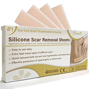 """HANASCAR Professional Silicone Scar Removal Sheets, Treat Scars Caused by C-Section, Surgery, Burn, Injuries, Acne, and Stretch Marks, Works on Old & New Scars, 5.7""""×1.57"""", 4 Reusable Sheets"""