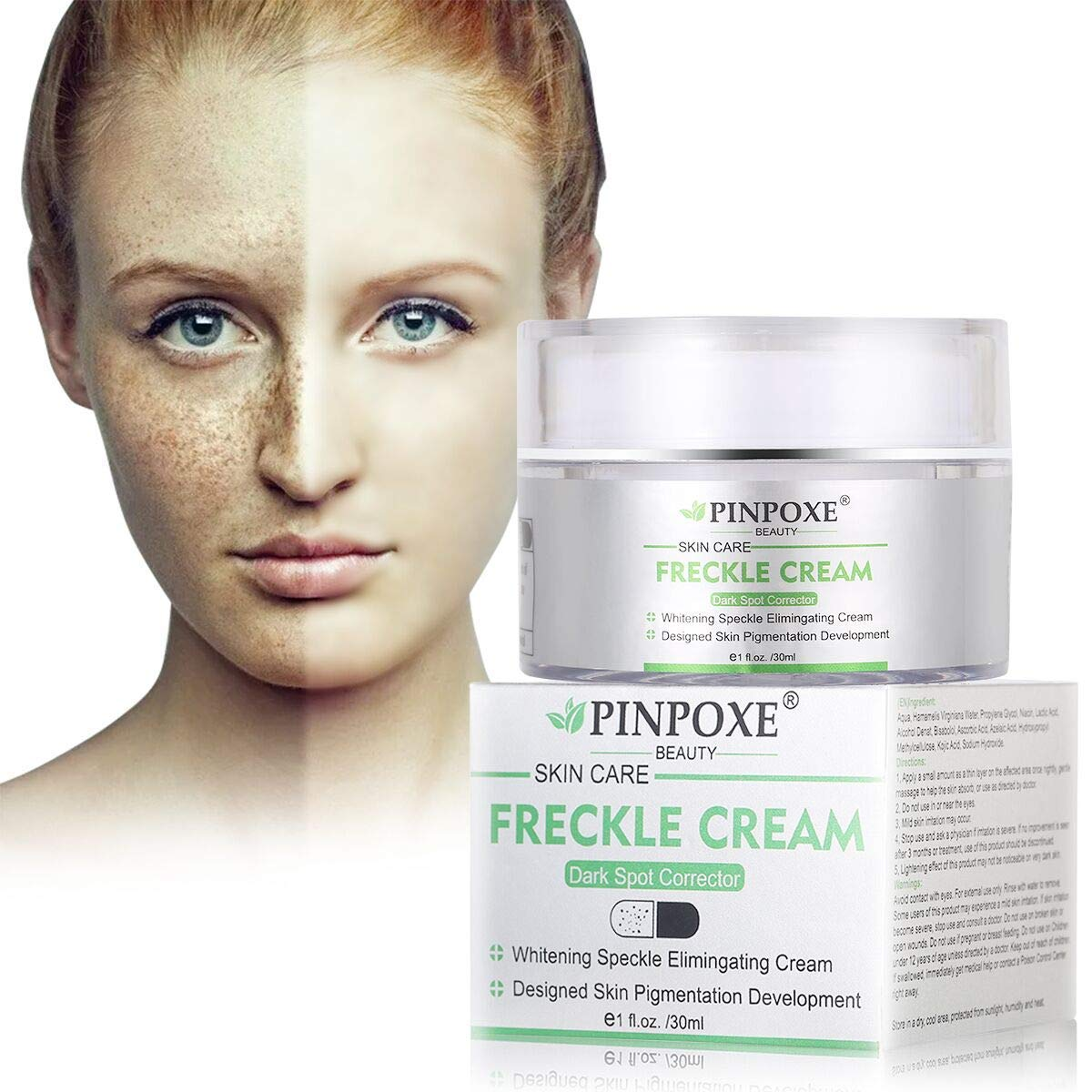 Whitening Cream, Freckle cream, Skin Brightening Cream, Bleaching Cream, Freckle Fade Removal, Dark Spot Corrector Remover, Whitens, Nourishes, Repairs & Restores Skin by BUOCEANS Official