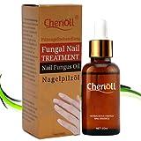 Pilz Nagel Behandlung, Nagelpilz Öl, Nagelpflege gegen Nagelpilz für helle Nägel. geeignet für Finger und Zeh gesunde Nägel