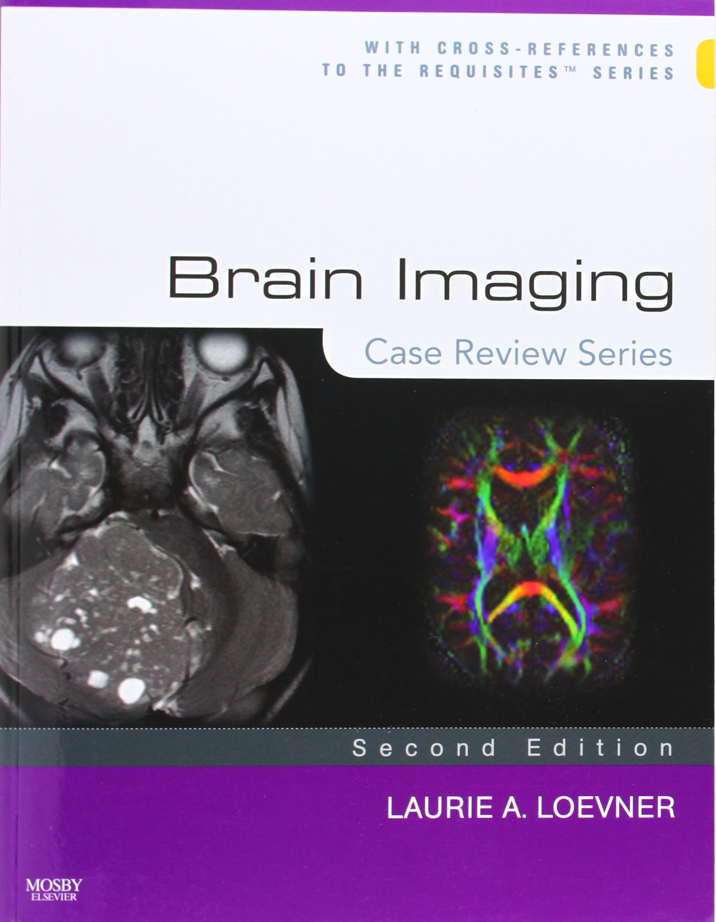 Brain Imaging: Case Review Series, 2e: Amazon.co.uk: Laurie A. Loevner MD:  Books
