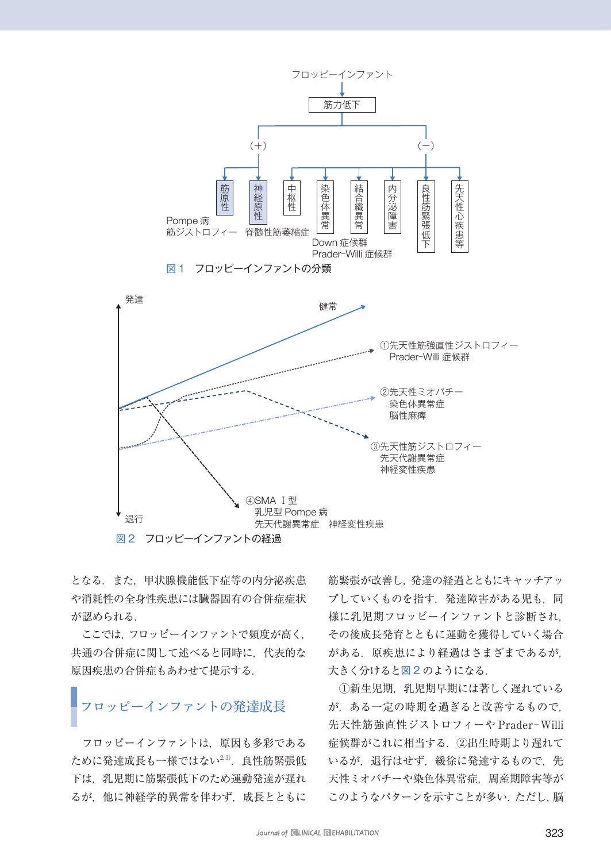 ファント フロッピー イン 【フロッピーインファント】病気の特徴と3つの症状と低緊張の治療方法