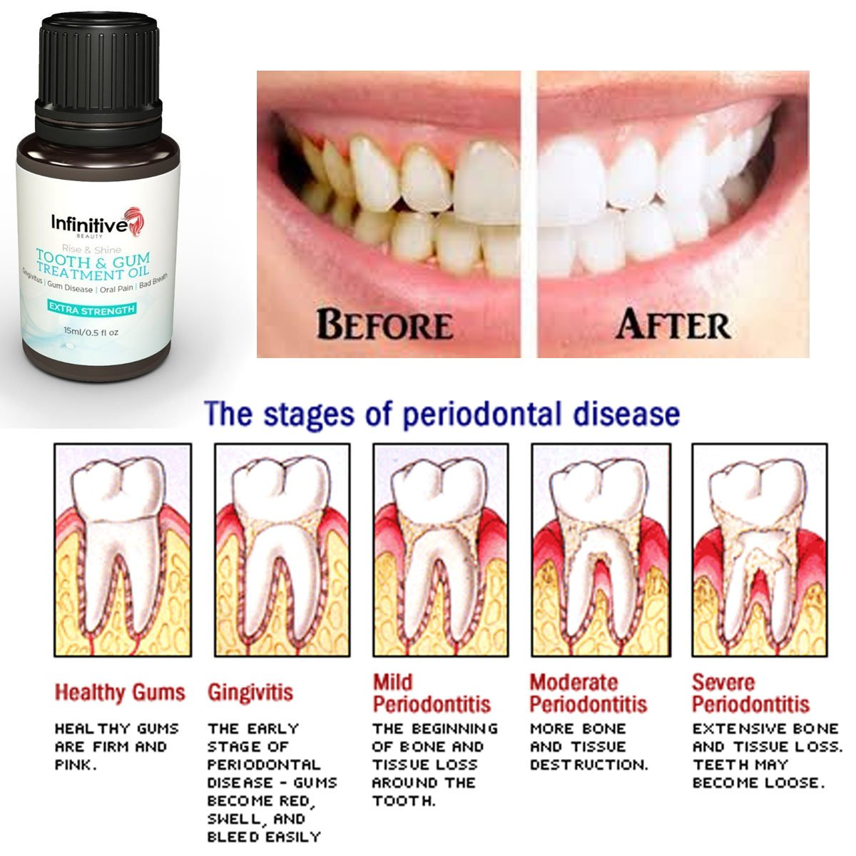 Home Treatment For Gum Boils