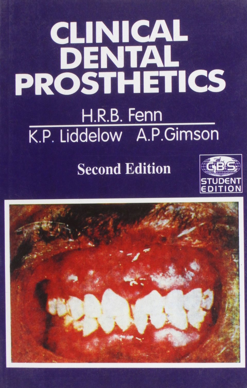 Buy clinical dental prosthetics book online at low prices in india buy clinical dental prosthetics book online at low prices in india clinical dental prosthetics reviews ratings amazon fandeluxe Images