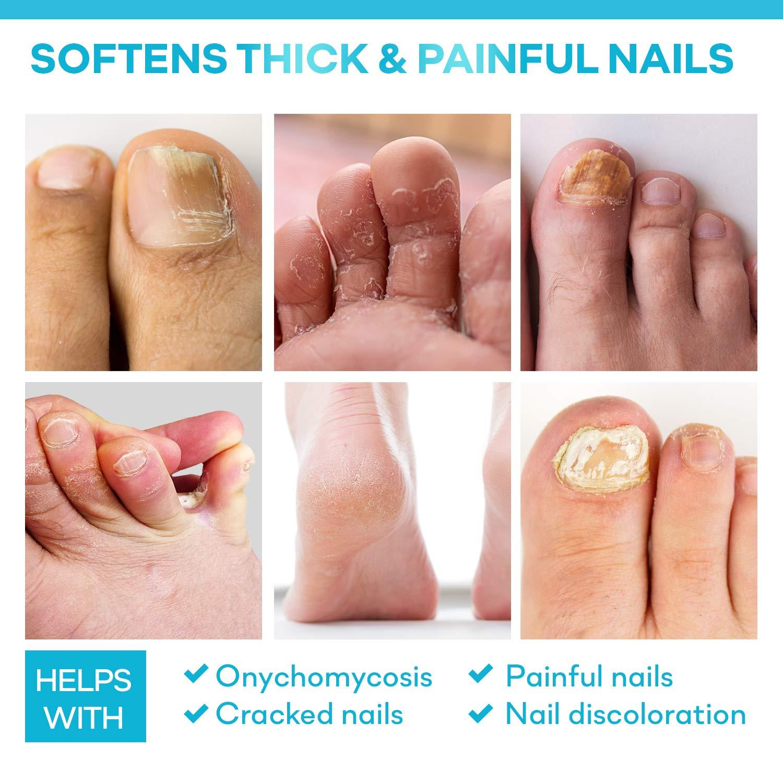 Ellocy 42% Urea Gel Max Plus Salicylic & Hyaluronic Acid - Softens and Rehydrates Cracked Heels, Elbows, Feet, Hands & Helps Rid Toenail Fungus : Beauty