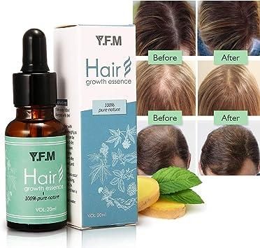 Huile Essentielle De Cheveux Serum De Croissance Des Cheveux