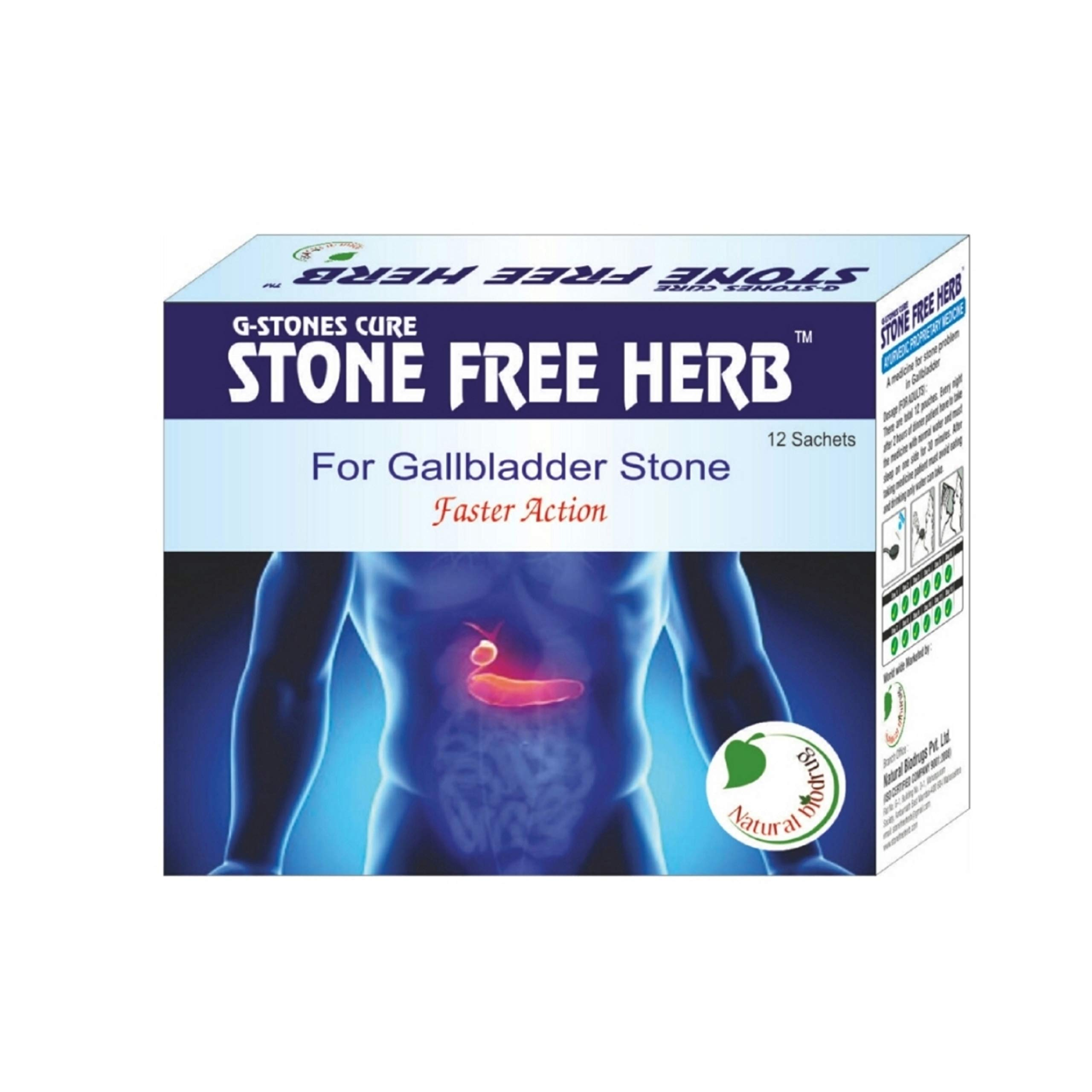 G Stone Cure (for Gall Bladder Stone) by STONEFREEHERB