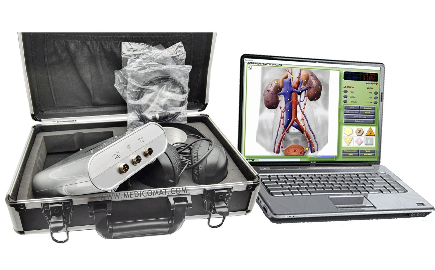 Hypertension Causes Treatment Medicomat Computer Accessories