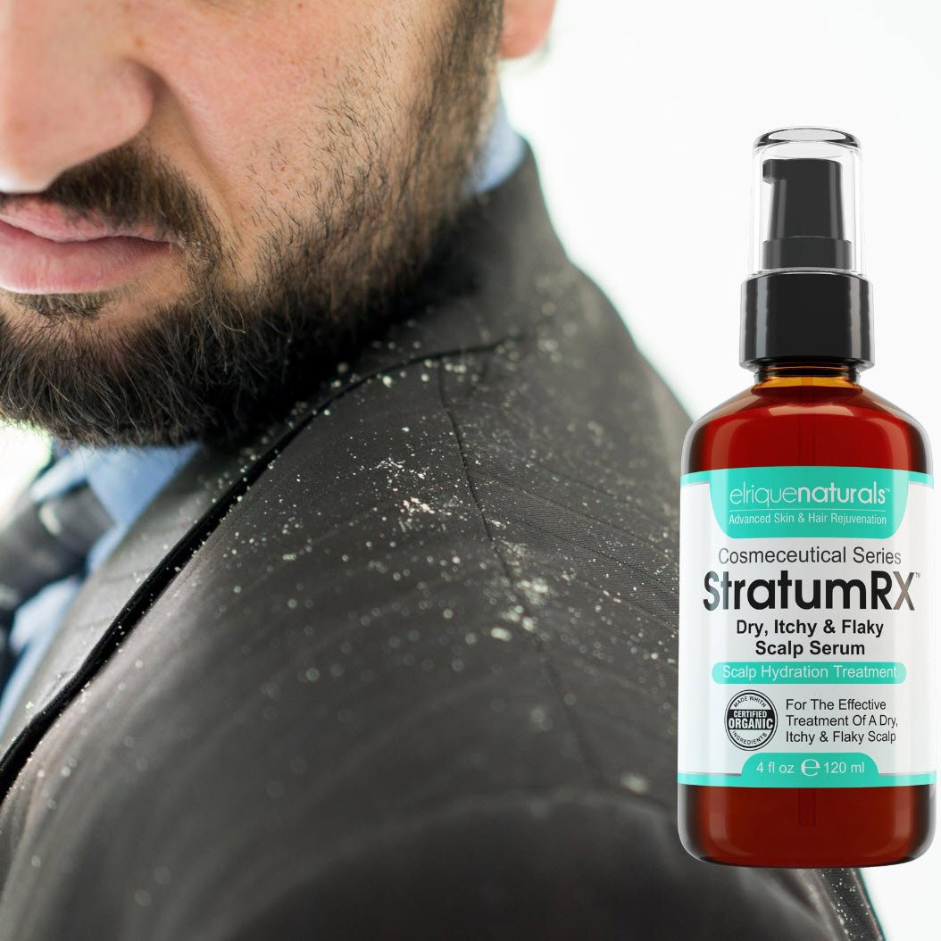 Natural Cure For Flaky Itchy Scalp