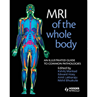MRI of the Whole Body: An Illustrated Guide for Common Pathologies
